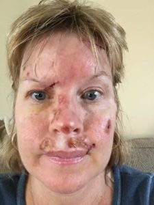 Judy's face ravaged by skin cancer